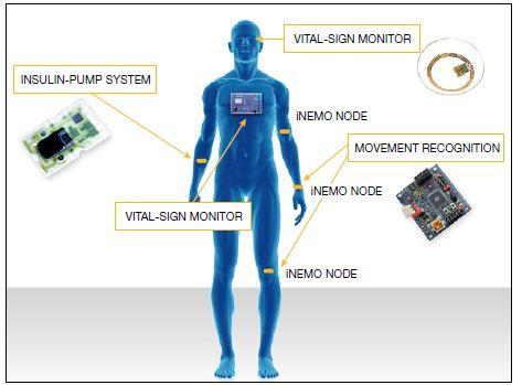 生物医学电子学领域的创新医疗传感器技术概述图片